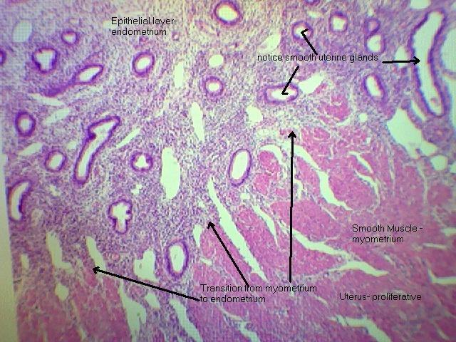 Uterus- proliferative 40x